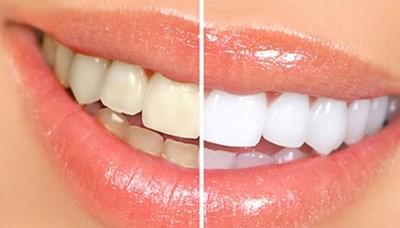 Blegning af tænder