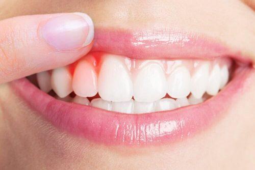 Tandkødsbetændelse